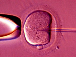 What to Consider before doing IVF?